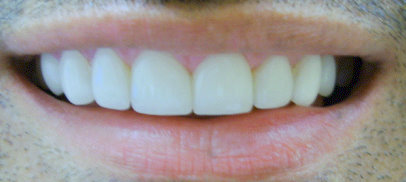 Image after veneers of a patient at Dental Comfort