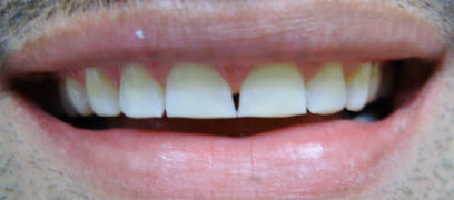 Image before veneers of a patient at Dental Comfort