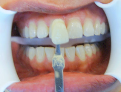 Image of a patient before whitening